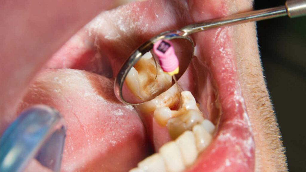 endodoncias dentista