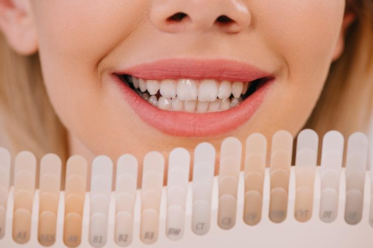 blanqueamientos dentales, tonos de color